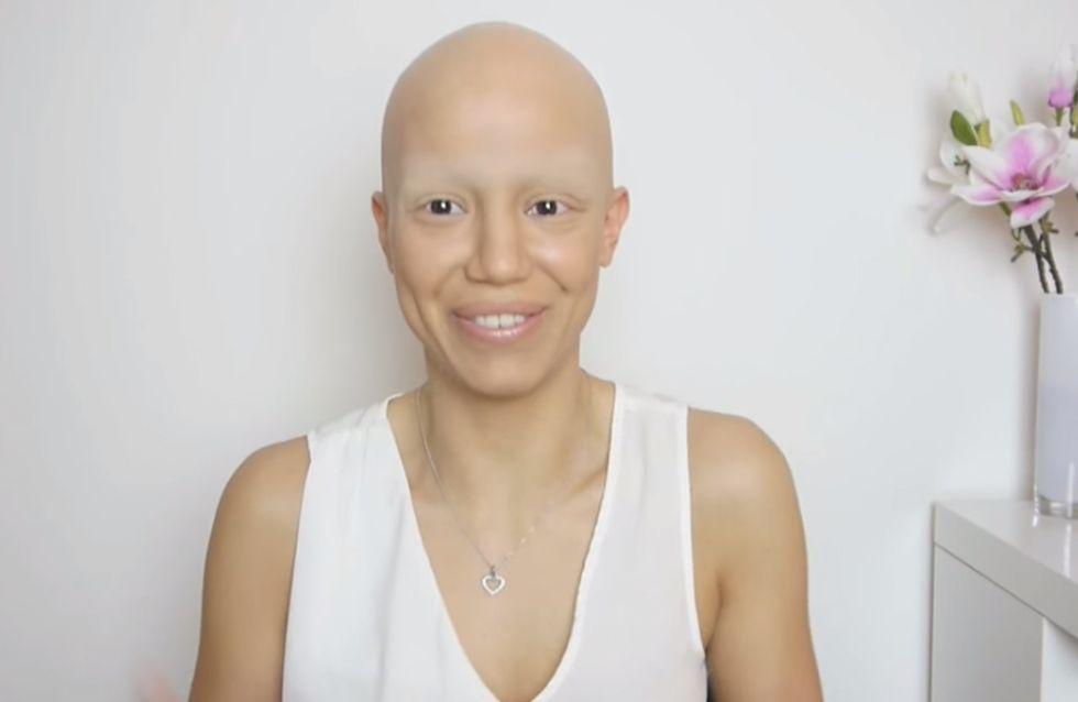 La pelade, cet étrange phénomène qui vous fait perdre vos cheveux