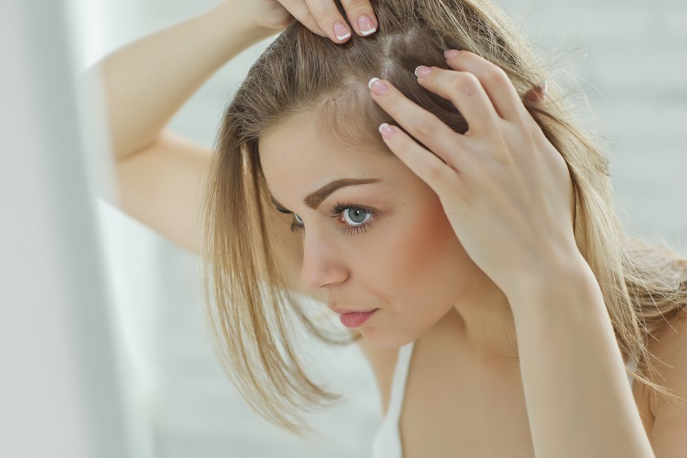 perte-cheveux-femmes-piloupilou 4