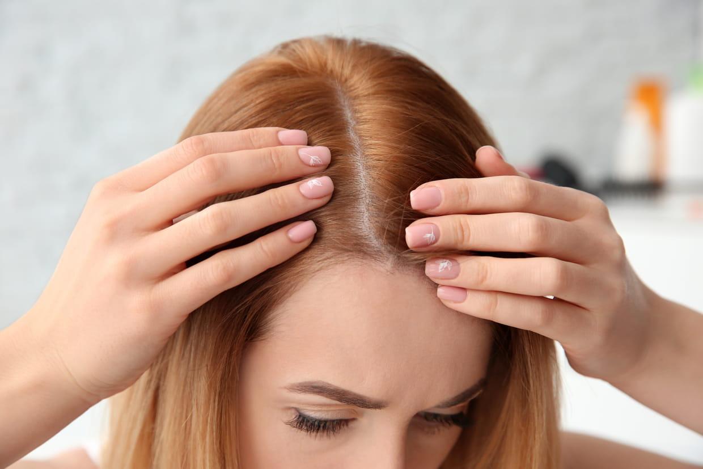 pellicules-cheveux-conseils-pilou-pilou